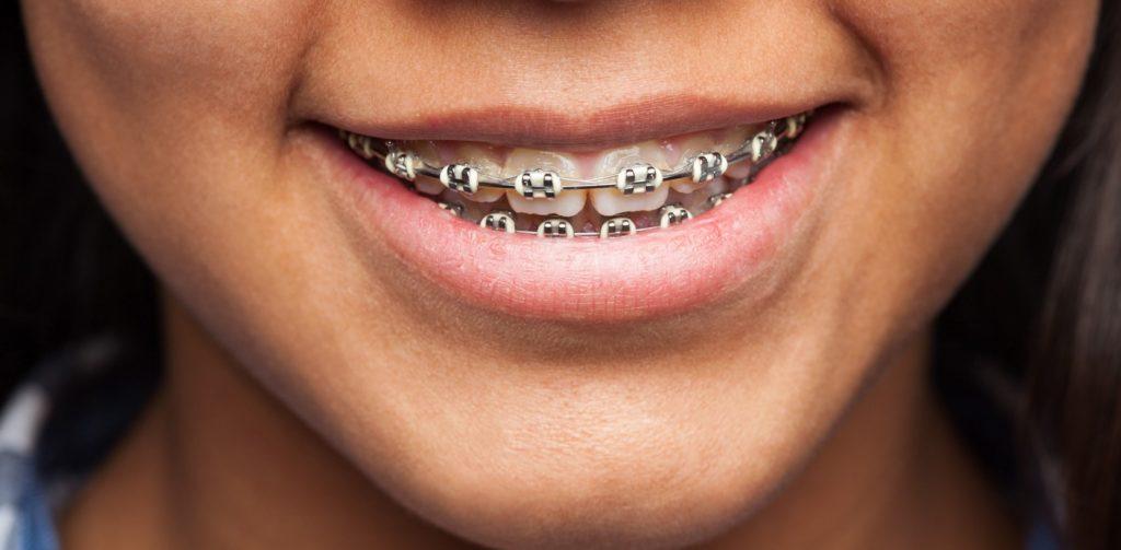 ortodoncia_aparatos_brackets_dentista_cuidados