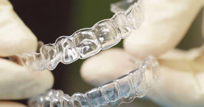 Ortodoncia_aparatos_Invisalign_dentista_cuidados